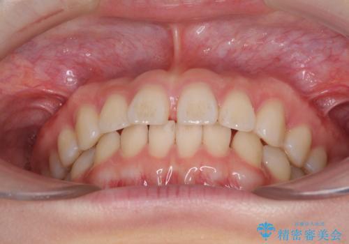 インビザラインによるすきっ歯の改善の治療前