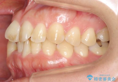 30代女性 残った乳歯を抜いてスペースを閉じる矯正 前歯のねじれの治療前