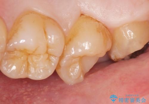 深い虫歯 丁寧にう蝕を除去し神経を保存 30代男性の治療中