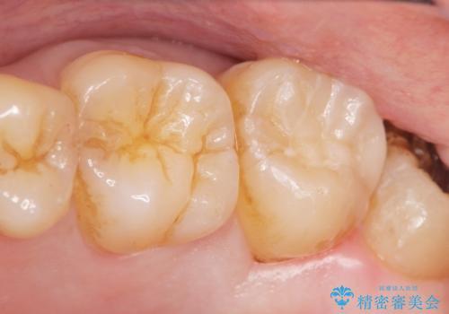 深い虫歯 丁寧にう蝕を除去し神経を保存 30代男性の症例 治療後