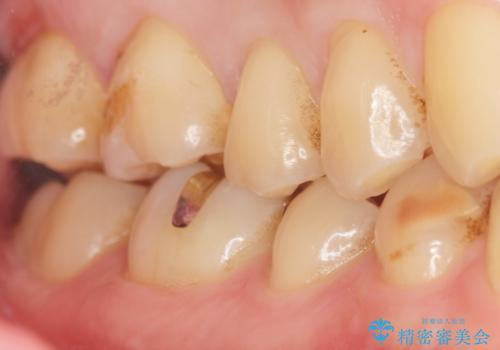 深い虫歯 丁寧にう蝕を除去し神経を保存 30代男性の治療後