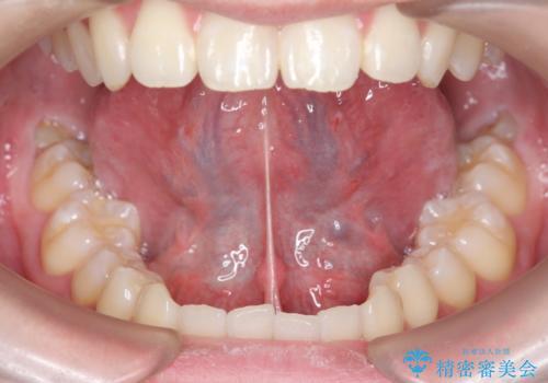舌小帯切除 舌が動かしにくいの治療前
