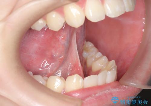 舌小帯切除 舌が動かしにくいの症例 治療前