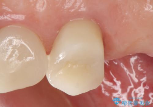 オールセラミッククラウン 治療途中の歯の補綴の治療後