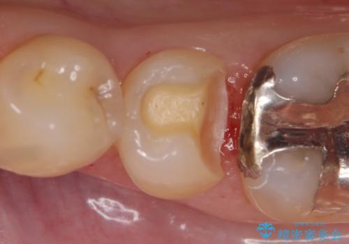 セラミックインレー 他院にて歯の神経治療が必要と言われた虫歯の治療中
