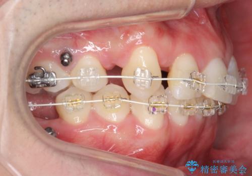 八重歯の矯正+歯のないところにインプラントの治療中