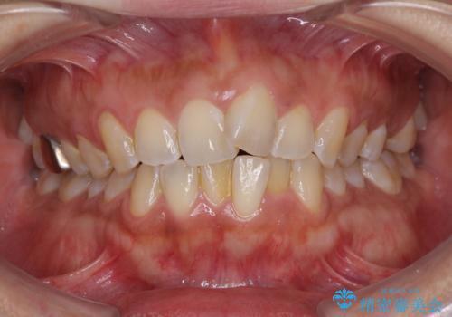インビザラインによる狭窄歯列の拡大矯正 の治療前