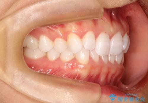 気になる前歯の歯並びをインビザラインで矯正の治療前