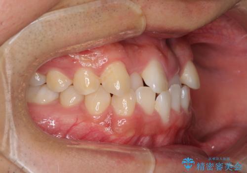 美容歯科でも断られた 著しい前歯のクロスバイトをワイヤー矯正で改善の治療前