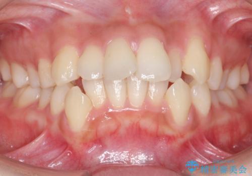 20代女性 口元を下げたい 前歯のがたつきの症例 治療前