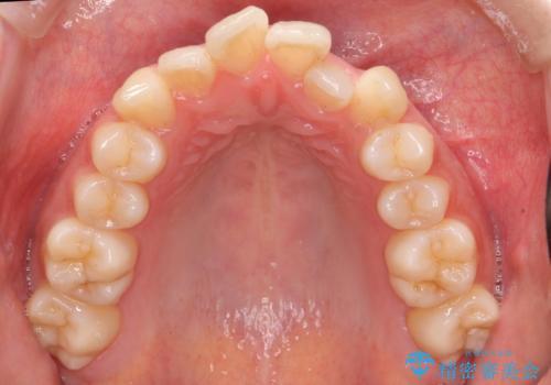20代女性 口元を下げたい 前歯のがたつきの治療前