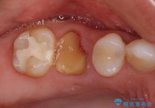 抜歯になった虫歯 奥歯のインプラント治療の症例 治療前