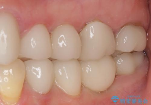 歯の欠損を放置 オールセラミックブリッジによる補綴治療の症例 治療後