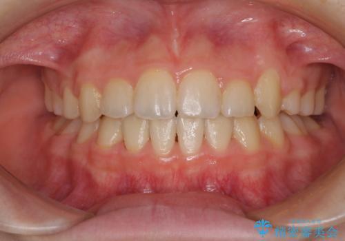 乳歯が残っている 目立たない装置での抜歯矯正の症例 治療後