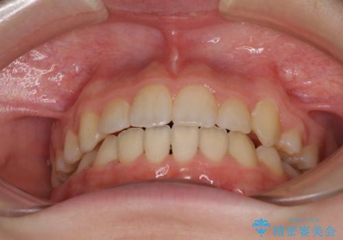 乳歯が残っている 目立たない装置での抜歯矯正の治療後
