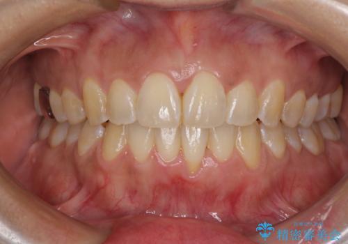 インビザラインによる狭窄歯列の拡大矯正 の治療後