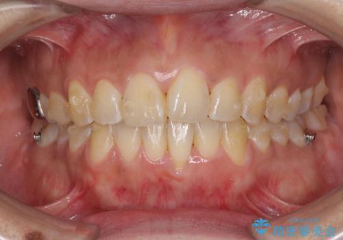 インビザラインによる狭窄歯列の拡大矯正 の治療中