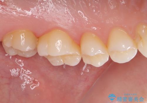 奥歯の虫歯 ゴールドインレーによる修復治療の治療前