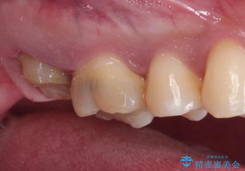 歯肉に埋もれたマージンライン 奥歯の被せものの治療前