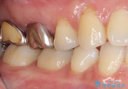 目立つ銀歯をセラミックにの治療後