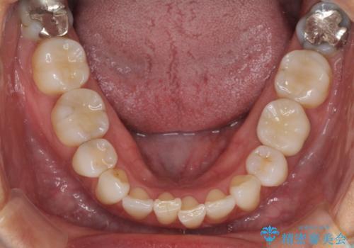 目立つ銀歯をセラミックにの症例 治療後