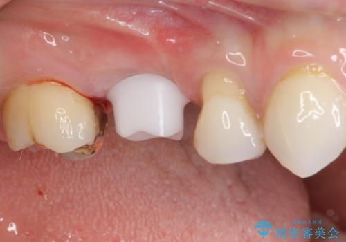 抜歯になった虫歯 奥歯のインプラント治療の治療中