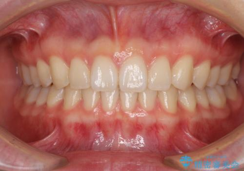 インビザラインによるすきっ歯の改善の症例 治療後