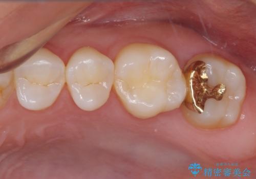奥歯の虫歯 ゴールドインレーによる修復治療の症例 治療後