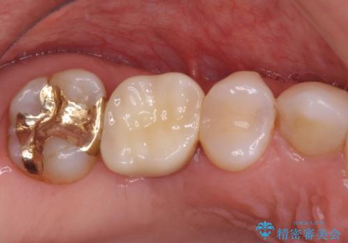 抜歯になった虫歯 奥歯のインプラント治療の症例 治療後