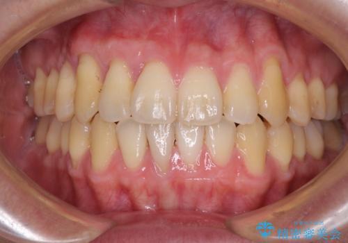 矯正歯科治療と前歯の歯肉移植術の症例 治療後