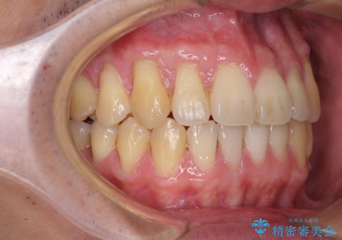 矯正歯科治療と前歯の歯肉移植術の治療後