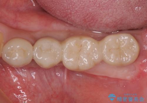 奥歯が痛くて噛めない インプラントによる補綴治療の症例 治療後