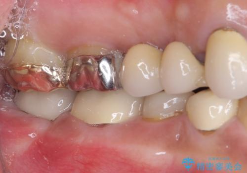 奥歯が痛くて噛めない インプラントによる補綴治療の治療後
