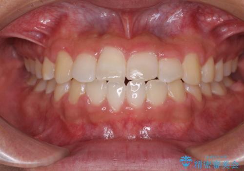 美容歯科でも断られた 著しい前歯のクロスバイトをワイヤー矯正で改善の症例 治療後