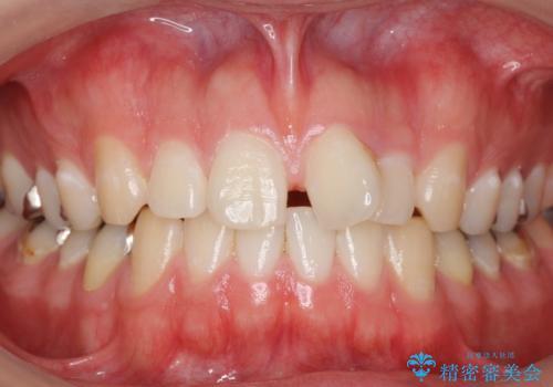 前歯のねじれ 上だけ部分矯正でコストダウンの症例 治療前