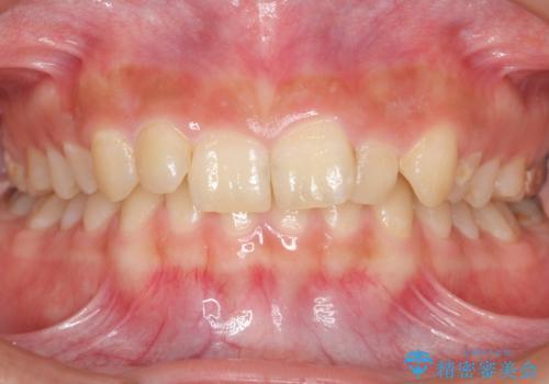 前歯のがたつき 過蓋咬合の治療前