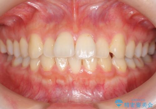 軽度の前歯のがたつき 下の前歯が生まれつき少ないの治療前