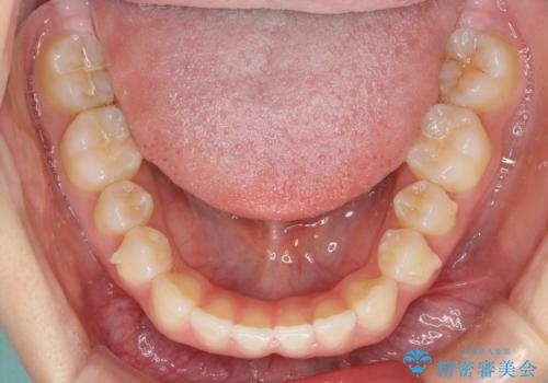 インビザラインによるすきっ歯の改善の治療中