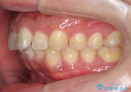 前歯のねじれを 1年かけずに矯正 インビザラインの治療中