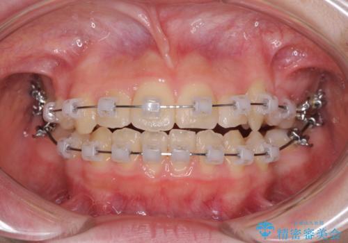 乳歯が残っている 目立たない装置での抜歯矯正の治療中