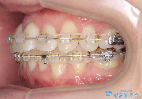 前歯がグラグラする 他院で、もうできることがないと言われたの治療中