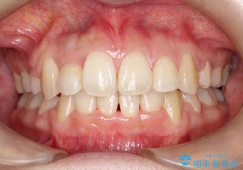 前歯が1本内側に引っ込んでいる ワイヤーによる抜歯矯正の治療後