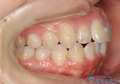 上下の前歯のがたつき 歯を抜かずに矯正の治療中