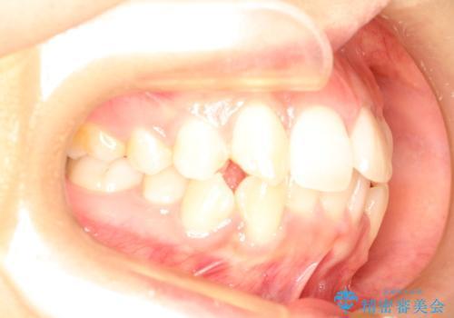 前歯が1本内側に引っ込んでいる ワイヤーによる抜歯矯正の治療前