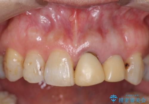 オールセラミッククラウン 前歯のブリッジ 気になる見た目の改善の治療前