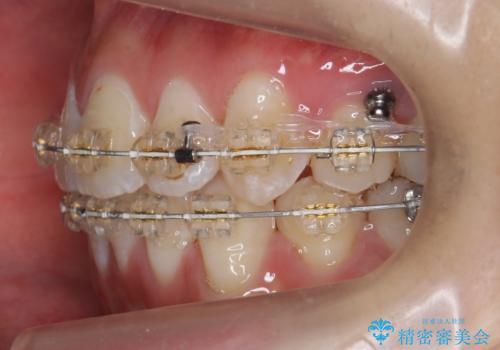 八重歯の治療 仕上がり重視での治療中