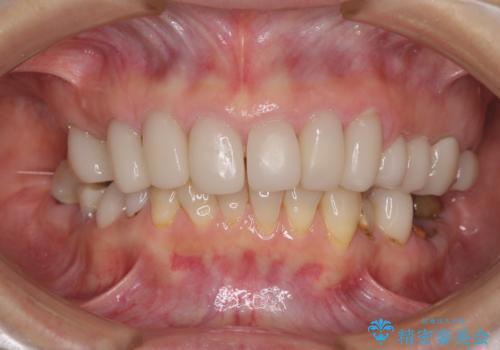 歯の欠損を放置 オールセラミックブリッジによる補綴治療の治療前