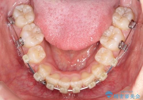 前歯が1本内側に引っ込んでいる ワイヤーによる抜歯矯正の治療中