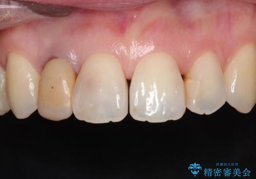 前歯が痛い。根管治療~オールセラミッククラウンの治療前