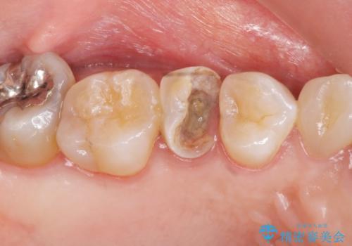 虫歯による歯の喪失 ジルコニアブリッジの製作の治療前